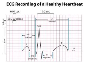 ECG Measure Heart Rate