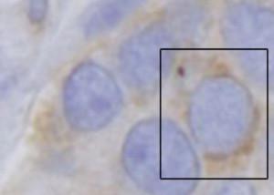 Nucleus protein