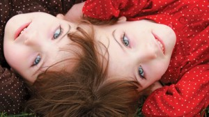 Siamese Twin Girls With Two Heads