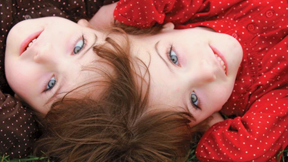 Siamese twin picture 66