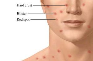 Smallpox symptoms