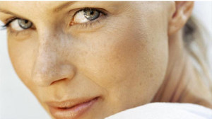 Age Spots On Skin